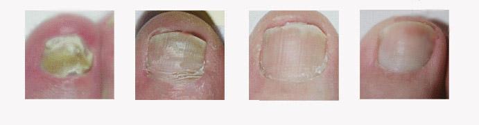 灰指甲的症状表现