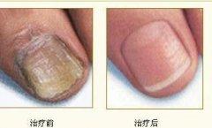 灰指甲的治疗前后对比图