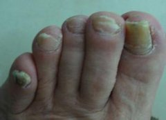灰指甲的影响有哪些